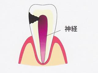 虫歯と根の治療について